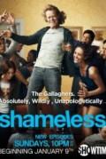 Shameless US
